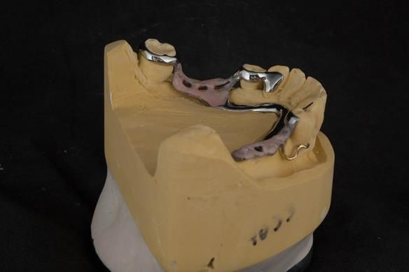 Figure 70 cobalt chromium framework - Scandinavian design with sublingual bar - keeping the denture components 3mm away from the gingival margin.