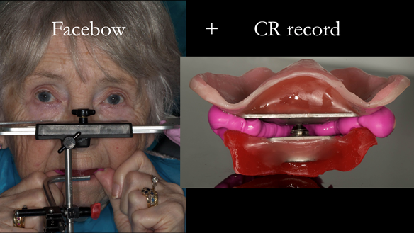 Figure 88 Facebow and CR record (central bearing apparatus) are using to mount the definitive casts on the articulator