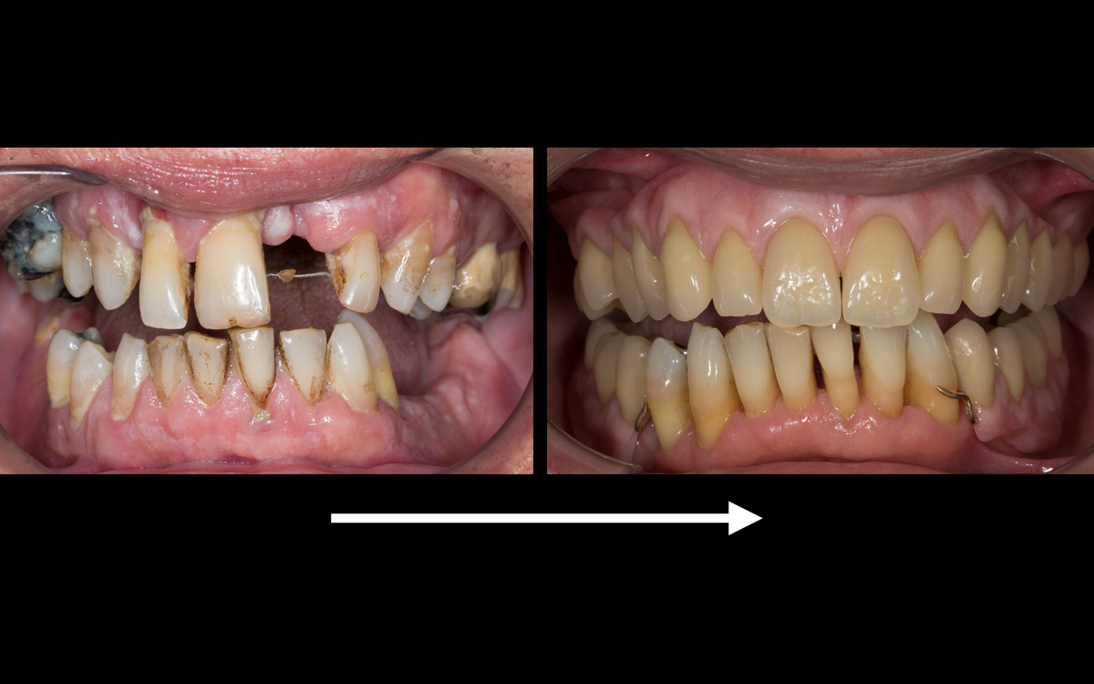 Figure 120 Before treatment and after treatment with Mk 2 maxillary cobalt chromium based complete denture and mandibular cobalt chromium based partial denture fitted. Periodontal therapy including surgery by Syed Abad, Specialist in Periodontics.