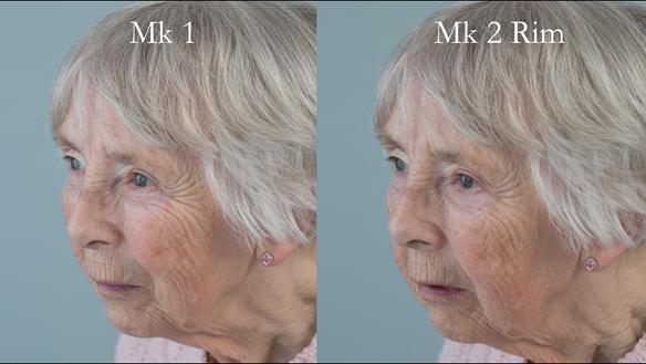 Figure 75 Comparison of Mk 1 denture and Mk 2 rim - improved lip support