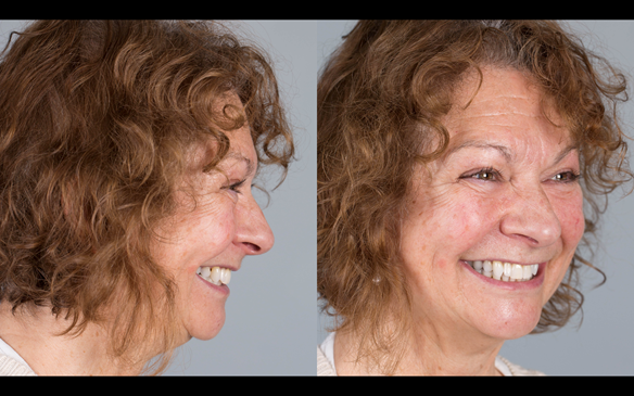 Figure 87 Definitive dentures fitted.