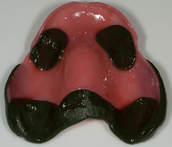 Figure 77 Maxillary special tray prepared with alginate adhesive