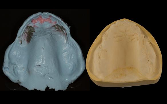 Figure 78 Definitive impression made in alginate (Blueprint) with resultant poured definitive cast