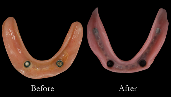 Figure 27 Before and after changes in shape of the denture fitting surfaces. Optimal extensions from border moulding. New denture metal reinforced too