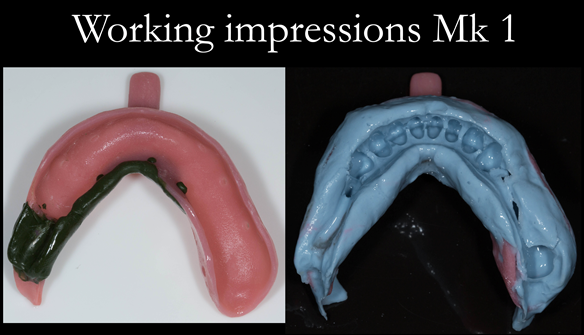 Figure 19 Working impression lower in custom tray with greenstick and alginate