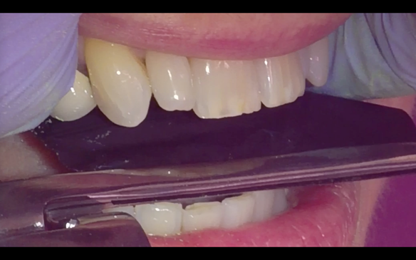 Figure 34 Occlusion check - Natural teeth to occlude in ICP in the same way with and without the denture.