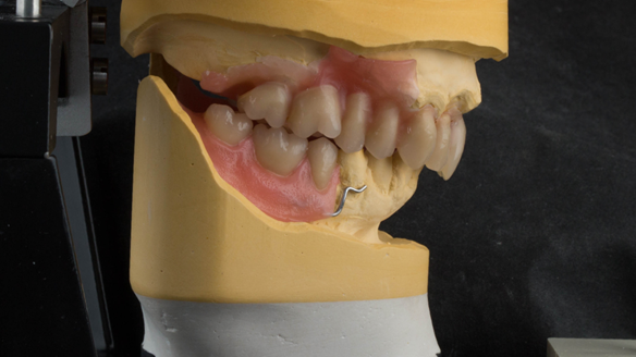 Figure 28 The remaining teeth to be extracted removed from casts with artificial teeth arranged to pre-drifted positions