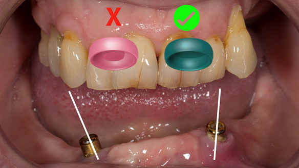 Figure 7 Green locator attachments (without male insert) work better on divergent dental implants
