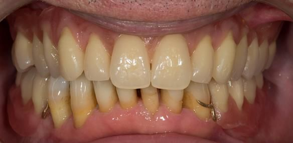 Figure 101 Mk 2 dentures try in - teeth in wax assessment of tooth positions and occlusion