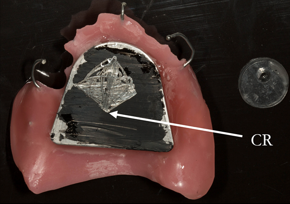 Figure 22 Inter-maxillary registration with central bearing apparatus. Maxillary plate with china graph pencil marking with arrow head scribed showing precise CR