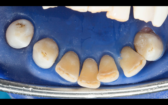 Figure 68 Composites after shaping with diamond bur on the lingual of the lower anterior teeth to assist in stabilising and supporting the Mk 2 metal based lower denture