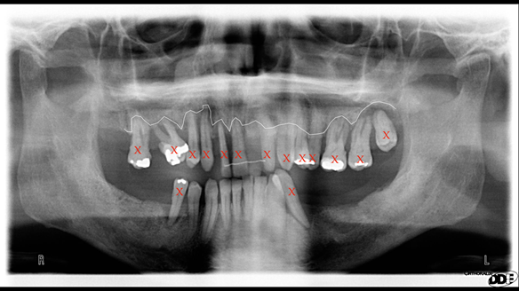 Figure 5 Pre-treatment radiograph indicating bone levels and showing teeth to be removed