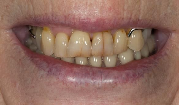 Figure 2 Pre - treatment. High smile line showing metal clasp. Upper partial denture and lower complete denture.