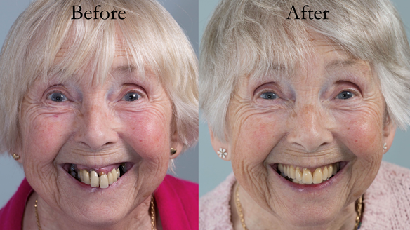 Figure 103 Before treatment and after treatment with definitive Mk 2 complete denture