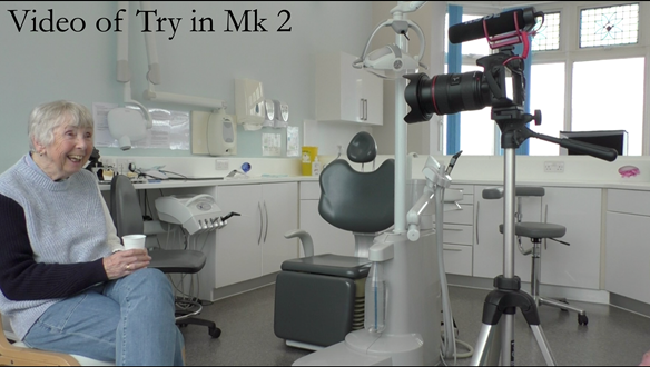 Figure 93 Video recording of the patient with Mk 2 try in - sipping cold water to minimise movement of teeth in wax