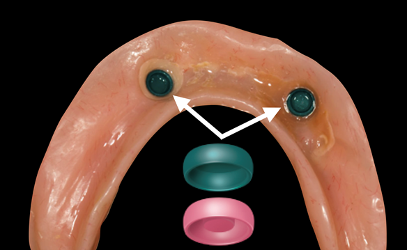 Figure 11 The attachment inserts were then changed from pink to green to allow the denture to seat