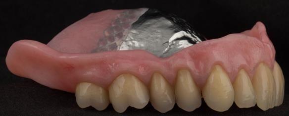 Figure 106 Mk 2 maxillary metal based denture with subtlety characterised Schottlander Enigmalife teeth. Gum colouring - Vertex