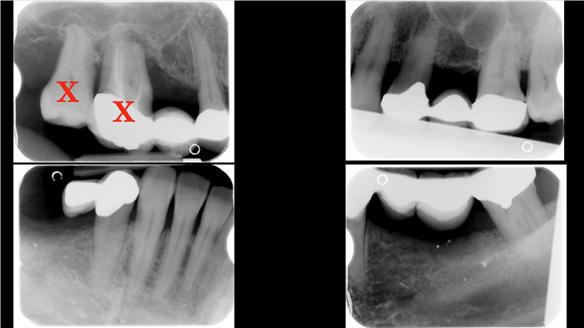 Figure 8 Radiograph - hopeless teeth 17, 16