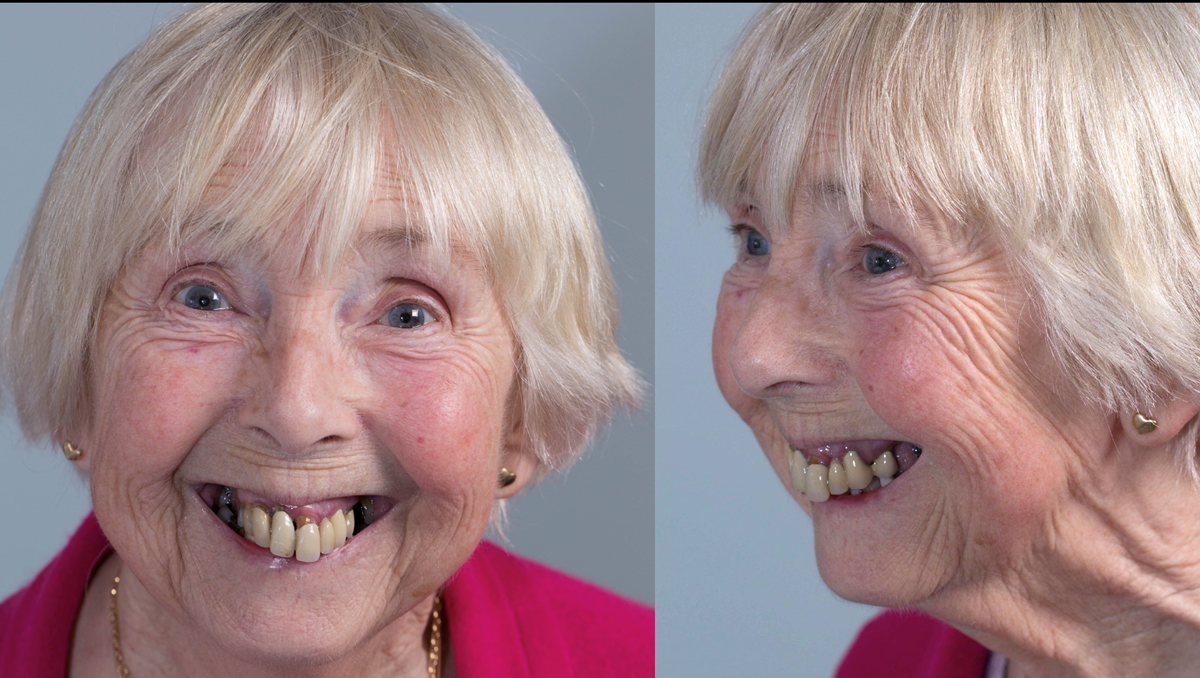 Figure 1 Pre - treatment. High smile line and failing upper teeth.