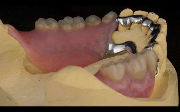 Figure 111 Mk 2 mandibular metal based denture showing open Scandinavian hygienic design.