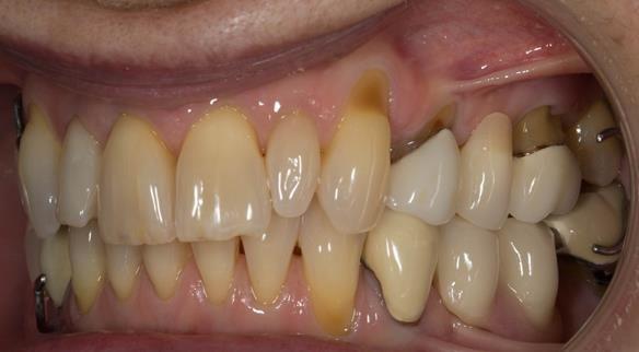 Figure 38 Immediate dentures fitting in ICP. Schottlander Enigmalife teeth.