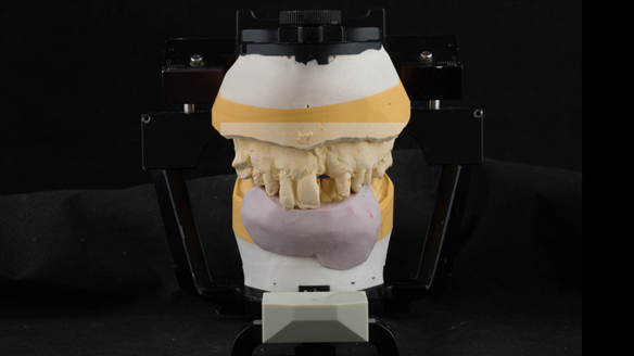 Figure 24 Mounted casts for Mk 1 denture. Silicone index used as a guide for positioning denture teeth