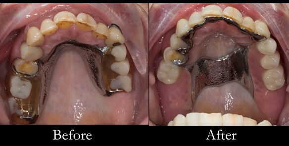 Figure 30 Finished upper denture. Optimal extension of saddles and palatal strap for maximum support. Dental bar gives additional support and should teeth be lost in the future this can be added to
