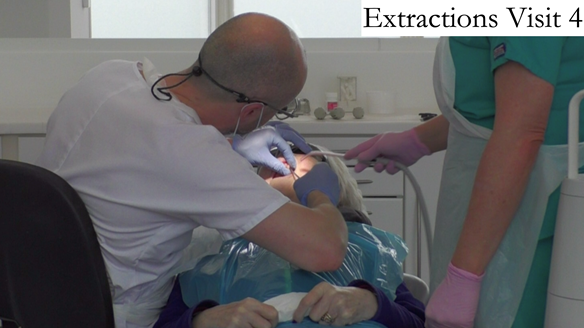Figure 31 Extraction of the upper teeth