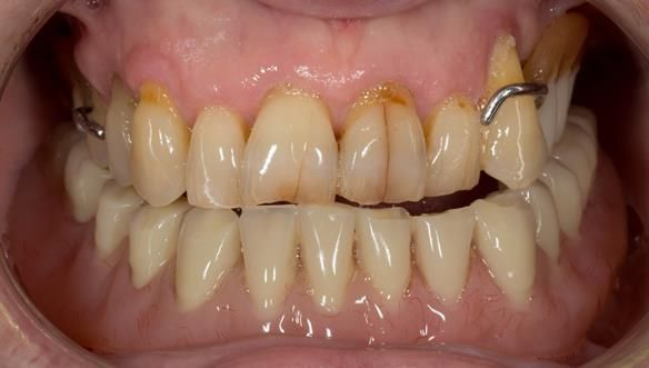 Figure 3 Pre - treatment. High smile line showing metal clasp. Upper partial denture and lower implant supported complete denture.