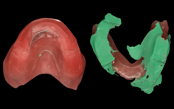 Figure 81 Primary registration rims used to record the APPROXIMATE centric relation (CR) and occlusal vertical dimension (OVD) to enable mounting of the definitive casts to fabricate the central bearing apparatus plates parallel to each other. Important s