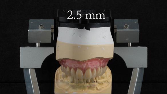 Figure 29 Mk 1 immediate denture - incisal plane lifted by 2.5 mm