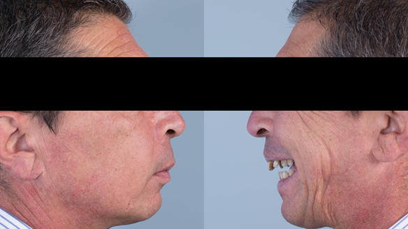 Figure 3 Pre-treatment with generalised periodontitis; stage IV grade C, unstable, risk factors: recent smoker. Prior to phase one treatment of immediate complete upper denture and immediate mandibular acrylic based partial denture.