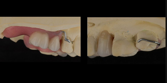 Figure 25 Mounted working cast for Mk 1 immediate denture. Teeth removed from cast - minimal preparation of the cast to reduce adjustments at fit