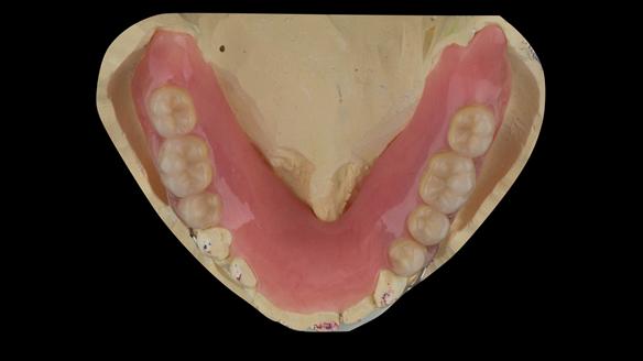 Figure 35 Mandibular immediate acrylic based partial denture. Lingual surfaces extended to the mylohyoid line avoiding lingual frenum. Schottlander Enigmalife teeth
