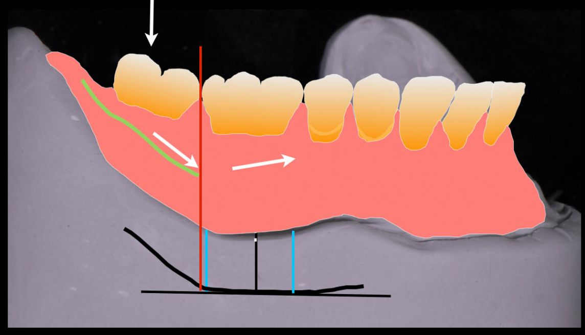 Why do we generally leave the second molars off complete dentures? Diagram courtesy of John Wibberley.