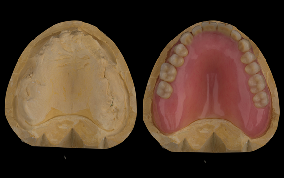Figure 58 Dental laboratory reline cast without and with denture
