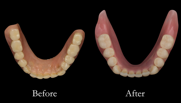 Figure 28 Before and after changes in shape of the denture fitting surfaces. Optimal extensions from border moulding. New denture metal reinforced too
