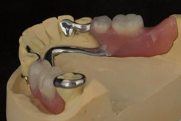Figure 81 Finished definitive partial denture. Scandinavian design with sublingual bar - keeping the denture components 3mm away from the gingival margin