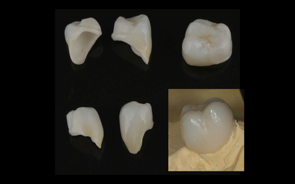 Figure 49 Porcelain fused to zirconia crown crowns mimicking Schottlander Enigmalife teeth in colour. Incorporating guiding surfaces, ledges and rest seats for the metal based partial dentures.