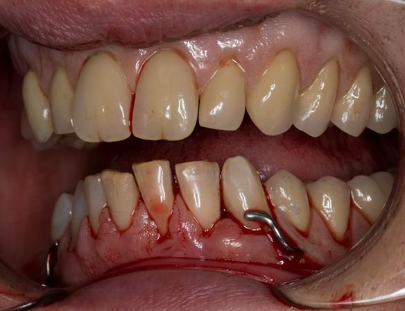 Figure 48 Visit 2 fitting of Mk 1 upper complete and lower partial immediate dentures