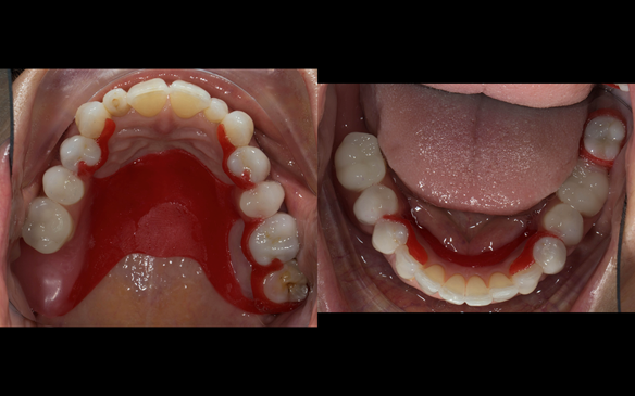 Figure 63 Teeth try in on pattern resin bases in the mouth. These help to confirm the accuracy of the working casts and the amount of metal work which will be visible in the final dentures