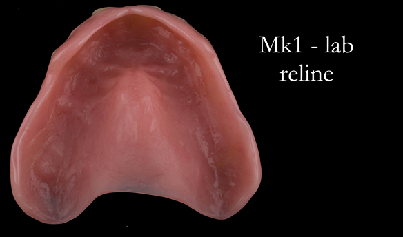 Figure 54 Thinned labial flange of reline - giving improved lip support