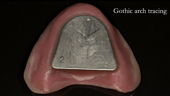 Figure 78 Gothic arch plate on light cure base - before chinagraph pencil application