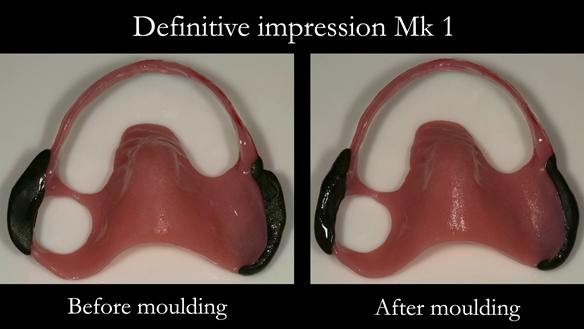 Figure 16 Definitive impression - border moulding with greenstick compound