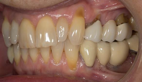 Figure 5 Pre - treatment.