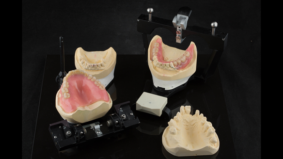 Figure 38 Mk1 immediate acrylic based dentures ready for fitting at visit 2
