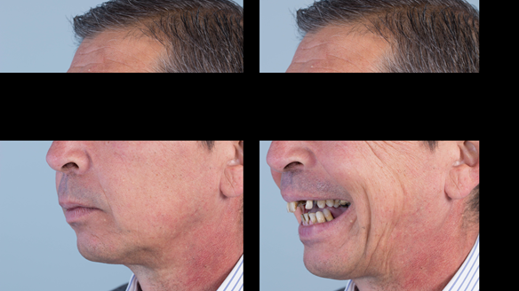 Figure 2 Pre-treatment with generalised periodontitis; stage IV grade C, unstable, risk factors: smoker. Prior to phase one treatment of immediate complete upper denture and immediate mandibular acrylic based partial denture.