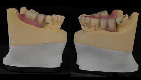 Figure 26 Finished upper immediate denture - 0.9mm stainless steel wire. UR gingivally approaching UL occlusally approaching