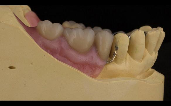 Figure 109 Mk 2 mandibular metal based denture with Schottlander Enigmalife teeth. Gum colouring - Vertex with 0.9 mm wrought gold clasps on LR4 and LL3