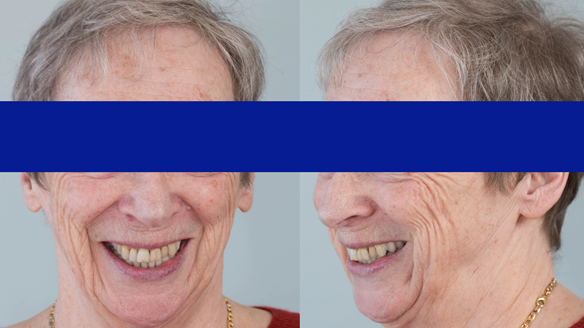Figure 33 Finished denture mimicking the natural teeth. Schottlander Enigmalife denture teeth and Dental D clasps